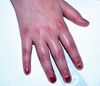 Fig 5. Kawasaki disease.