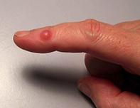 Fig 1. Red nodule