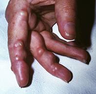 Fig 4. Rheumatoid nodules