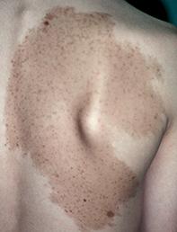 Fig. Lesion on back.