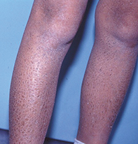 A scaly brown rash on the lower legs | Medicine Today