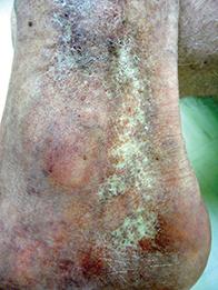 Fig. Atrophic skin.