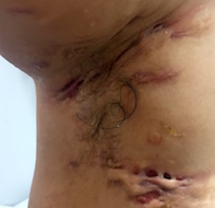 Chronic inflammatory nodules in the groin area | Medicine Today