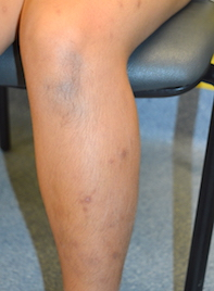 A pruritic rash on the lower legs and arms | Medicine Today
