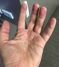 peeling of the palmar surface of the fingers medicine today