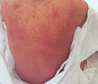 Dermatology Quiz | Medicine Today