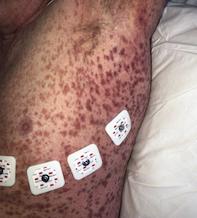 Fig 1a. Petechial rash.