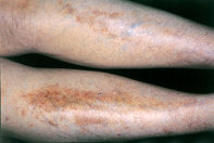 Fig 1. Pigmented patches