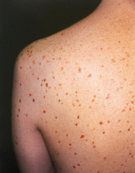 Fig 1. Red-brown lesions