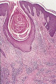 Fig 2. Scalp biopsy