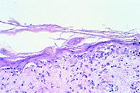 Fig 2. Atrophic epidermis
