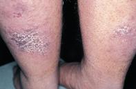 Fig 1. Violaceous plaques