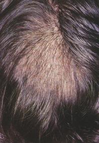 Fig 1. Diffuse alopecia