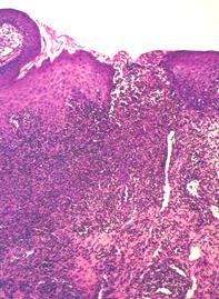Fig 2. Mucosal biopsy