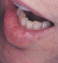 Fig 1. Translucent nodule