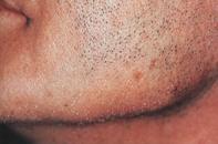 Fig 1. Beard hair loss