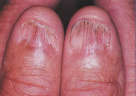 Fig 1. Atrophic nail plates