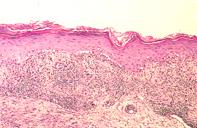 Fig 2. Skin biopsy