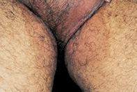 Fig 1. Pigmented rash