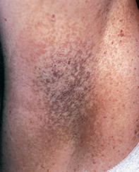 Fig 1. Reticular pigmentation