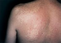 Fig 1. Hypopigmented patches