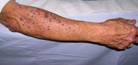 Fig 1. Arm rash