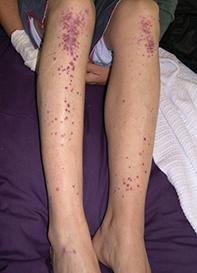 Fig. Leg rash